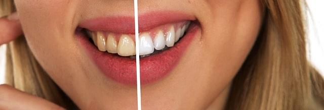 Gelbe Zähne - aufhören zu rauchen